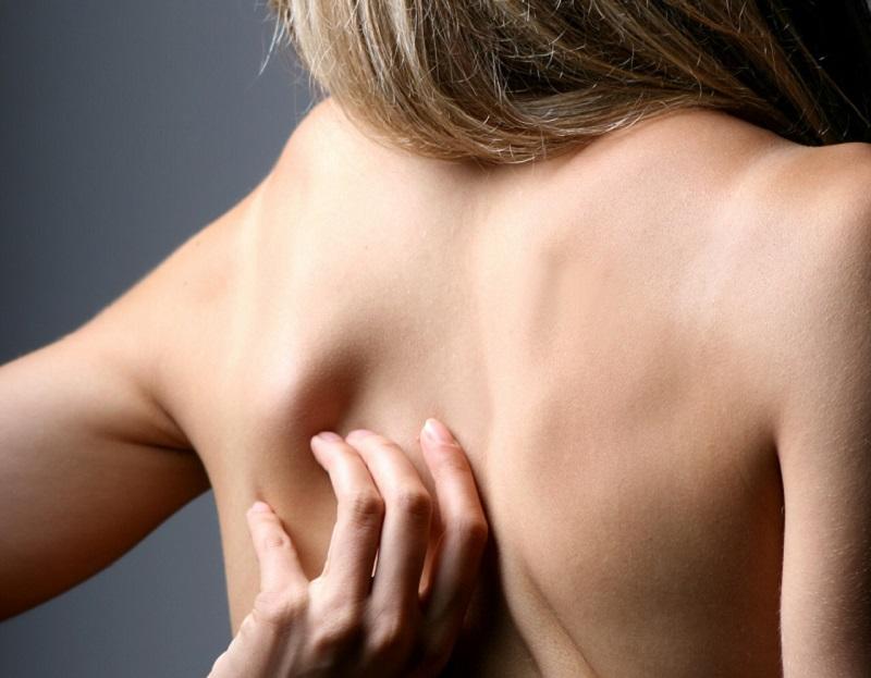 Ketika Anda berkeringat, pakaian yang ketat akan membuat keringat menempel di kulit dan menyumbat pori-pori