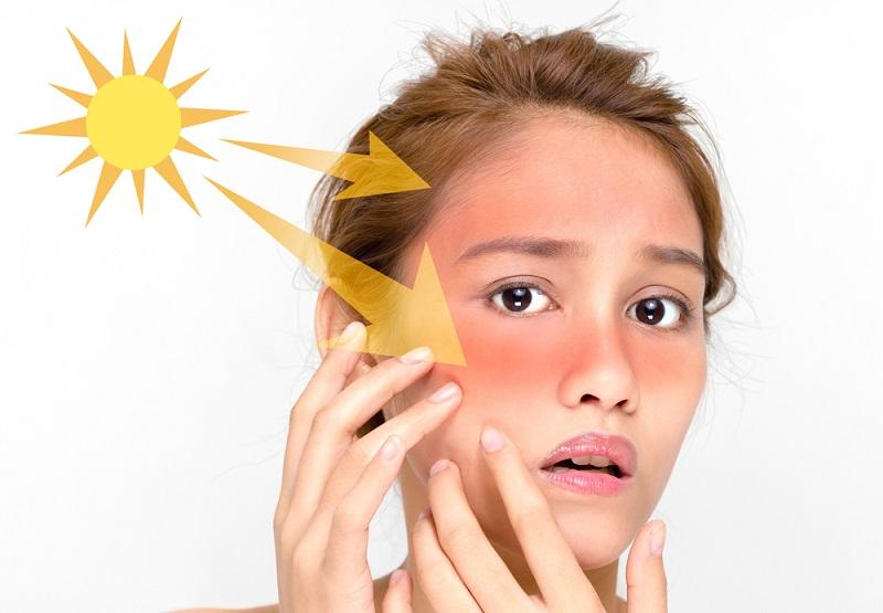 Cara Cepat Memutihkan Kulit Yang Gelap Akibat Paparan Sinar Matahari Okezone Lifestyle