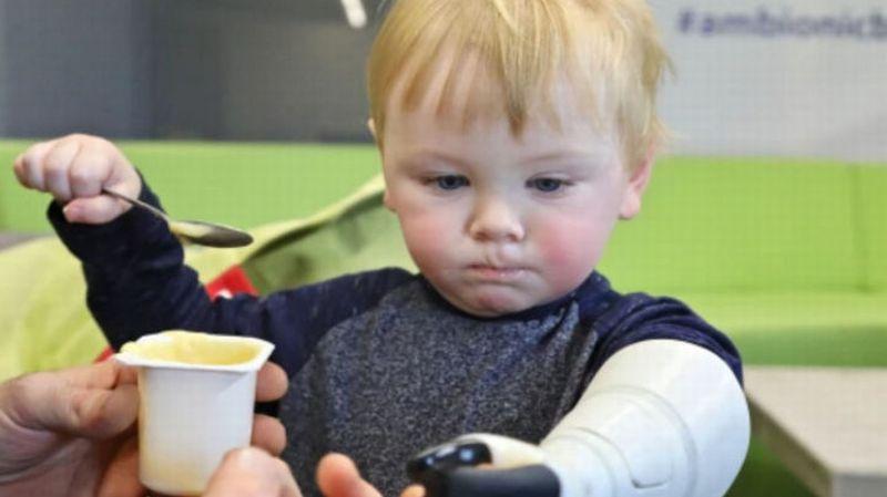 Seorang Ayah Ciptakan Tangan Bionik Menggunakan 3D untuk Anaknya