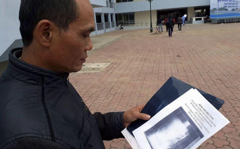 Pria asal Vietnam, Nhat, meneliti foto rontgen yang memperlihatkan gunting operasi di dalam perutnya. (Foto: EPA)