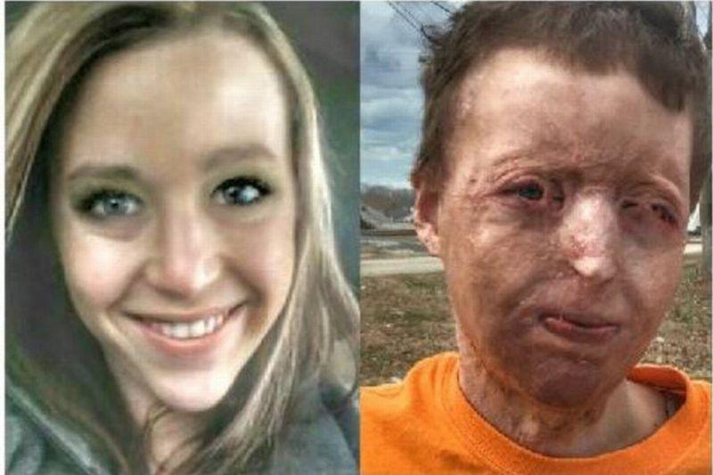 Tragis! Akibat Kecerobohan Suaminya, Wajah Ibu Muda Ini Rusak Terbakar