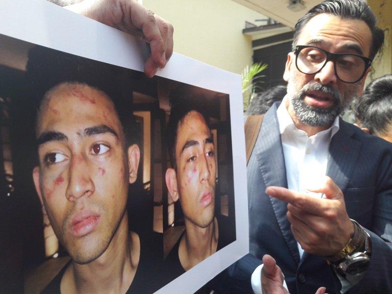 Jeremy Thomas laporkan polisi penganiaya anaknya (Foto: Dara/Okezone)