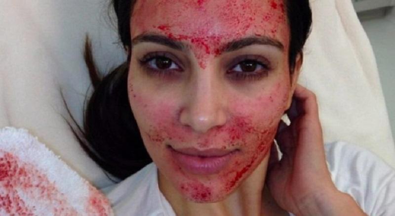 https: img.okezone.com content 2017 07 22 194 1742019 facial-darah-hingga-diet-cacing-pita-perawatan-kecantikan-tersadis-di-dunia-Z4Bs3sad1v.jpg