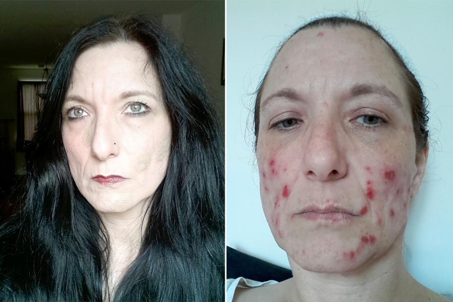 https: img.okezone.com content 2017 08 28 481 1764351 mengerikan-menderita-dermatillomania-perempuan-ini-doyan-mengelupasi-kulitnya-sendiri-v2lB5lCrLV.jpg