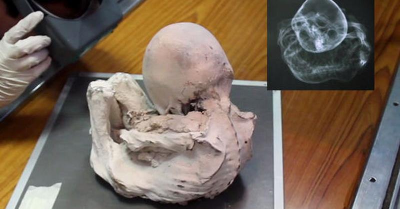 https: img.okezone.com content 2017 08 28 56 1764954 mumi-bayi-ditemukan-di-peru-merupakan-bayi-alien-benarkah-nNWVUlsOwh.jpg