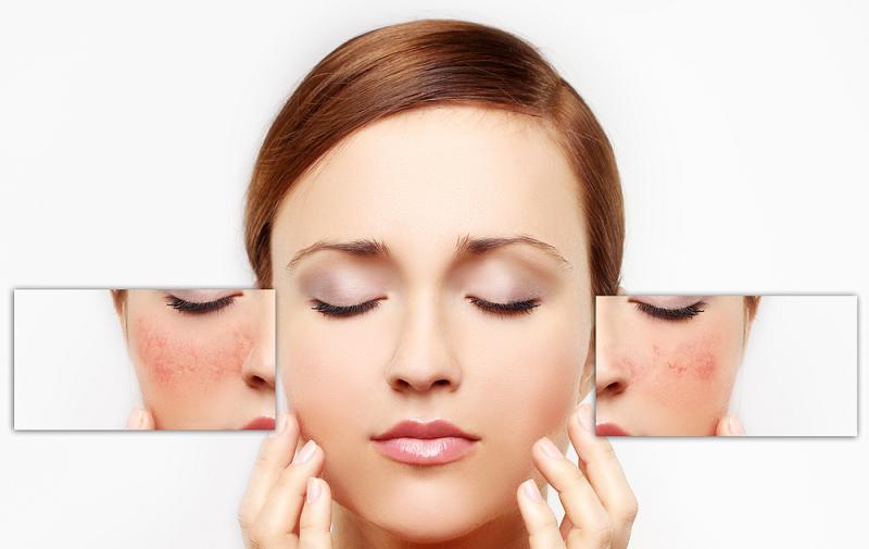 Seperti dilansir New Beauty, berikut adalah beberapa ciri kulit alergi terhadap produk kecantikan.