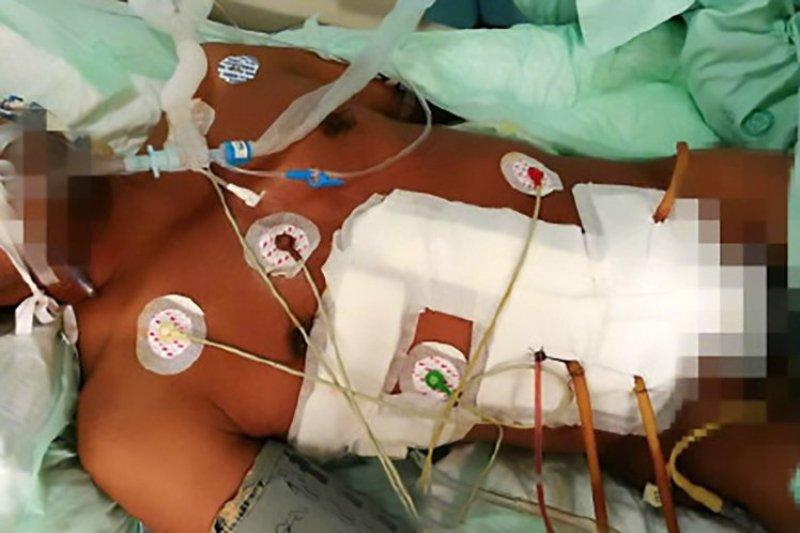 Yang menjalani operasi selama tujuh jam untuk menarik batangan besi itu dari tubuhnya. (Foto: AsiaWire)