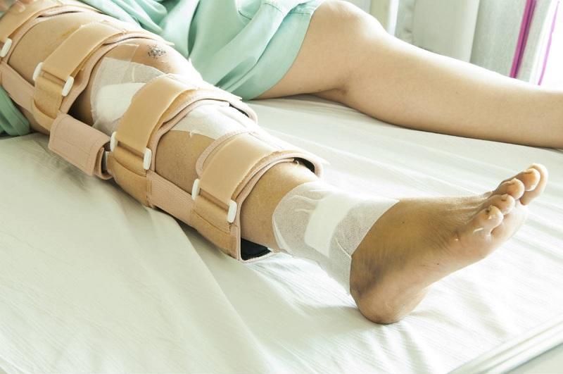 Kasus Patah Tulang Meroket, Saatnya Gunakan Implan Tulang Buatan Sendiri :  Okezone Lifestyle