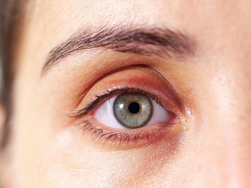 Awas Kelopak Mata Kuning Bisa Jadi Tanda Awal Serangan Jantung Okezone Lifestyle