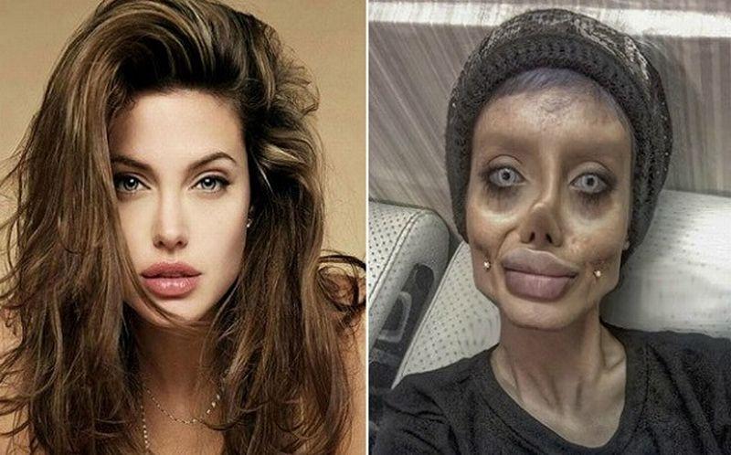 Wanita Iran Nekat Lakukan 50 Operasi Plastik Demi Wajah Mirip Angelina Jolie Okezone News