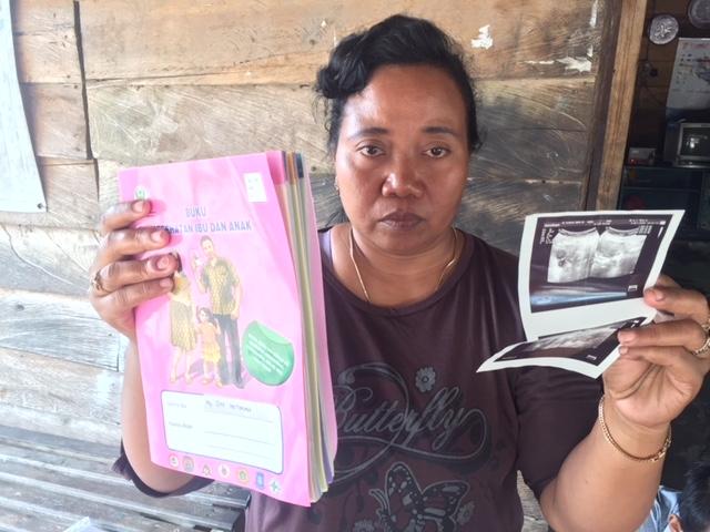 Ketika Janin 4 Bulan Menghilang Dari Perut Siti Okezone News