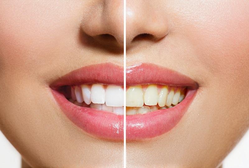 https: img.okezone.com content 2018 01 14 481 1844750 penyebab-gigi-kuning-mulai-dari-obat-kumur-sampai-buah-asam-ziBxXOUQoP.jpg