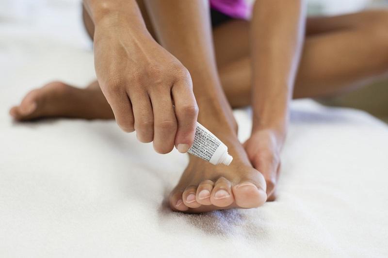 berjalan tanpa alas kaki alias nyeker adalah salah satu cara bagi mikroba untuk masuk dan menginfeksi kulit.