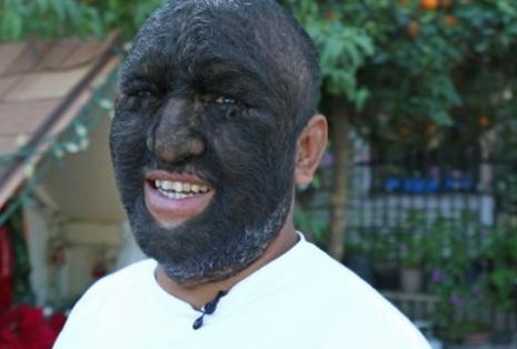 https: img.okezone.com content 2018 02 09 18 1856956 kerap-diejek-karena-wajahnya-ditutupi-rambut-pria-ini-dijuluki-wolf-man-5vBlKEXCay.png