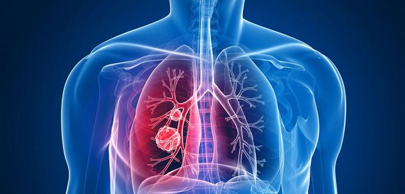 https: img.okezone.com content 2018 02 23 481 1863757 tidak-merokok-tapi-kena-kanker-paru-pahami-faktor-risikonya-berikut-ini-8w9A6JtxS1.jpg