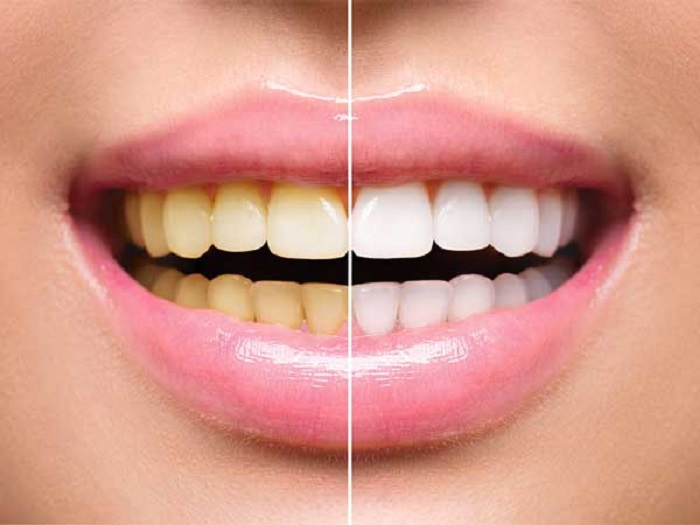 7 Bahan Alami Solusi Atasi Gigi Kuning Senyum Kembali Berkilau