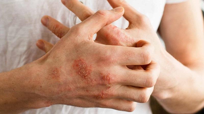 https: img.okezone.com content 2018 04 04 481 1881962 terungkap-masalah-yang-bikin-tingginya-angka-penyakit-kulit-di-bangkalan-dan-desa-batukarang-5c4nKDBj7I.jpg