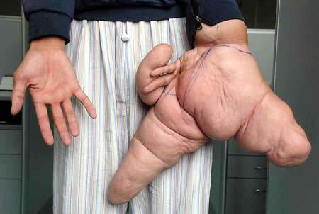 https: img.okezone.com content 2018 04 15 194 1886831 5-manusia-dengan-ukuran-anggota-tubuh-langka-salah-satunya-jari-terbesar-di-dunia-oFjvhnkVVc.jpg