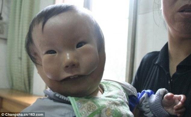 Lahir Topeng Ini Menyerupai Kasihan Bayi Di China Dengan Wajah
