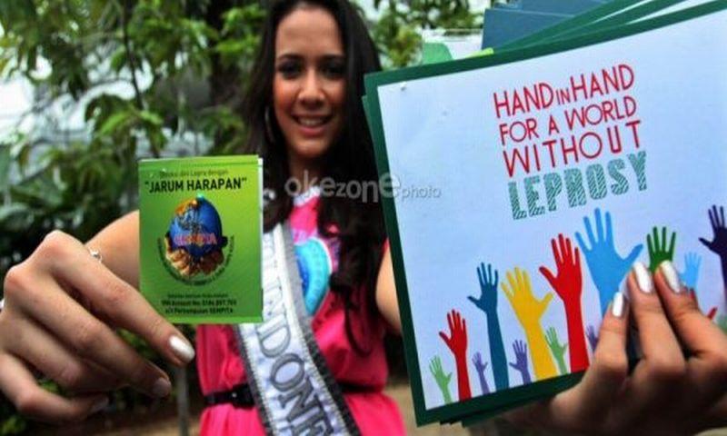 https: img.okezone.com content 2018 05 13 481 1897552 indonesia-ranking-3-penderita-kusta-di-dunia-yuk-ketahui-penyebabnya-LJQ1EbL3ZY.jpg