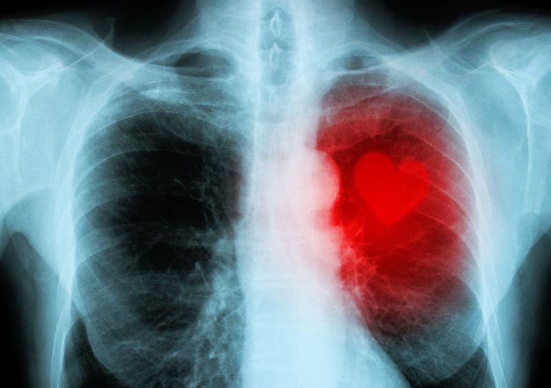 https: img.okezone.com content 2018 05 15 481 1898464 7-langkah-mencegah-gagal-jantung-yuk-mulai-sejak-dini-aIqc79NIwz.jpg