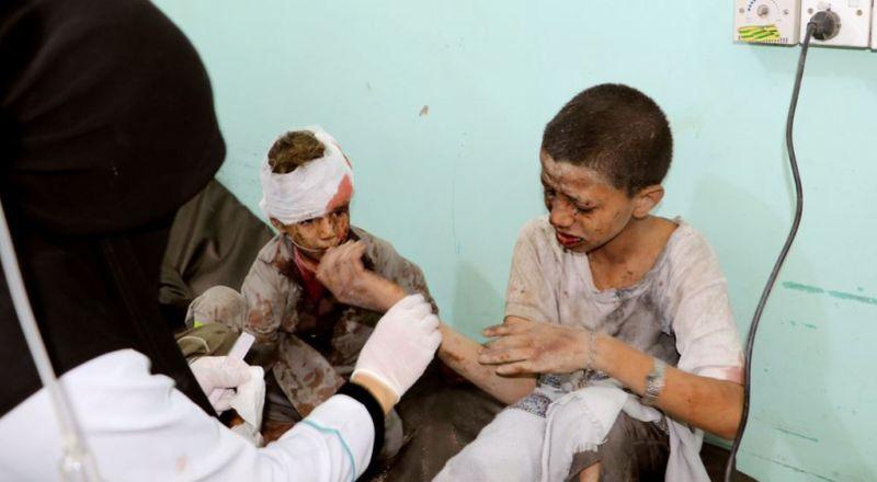 https: img.okezone.com content 2018 08 25 18 1941403 pbb-kecam-serangan-koalisi-pimpinan-arab-saudi-yang-tewaskan-22-anak-anak-di-yaman-ncfe5OlbIQ.jpg