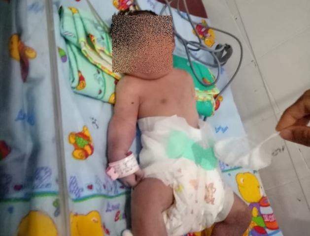 Image Result For Bayi Bermata Satu