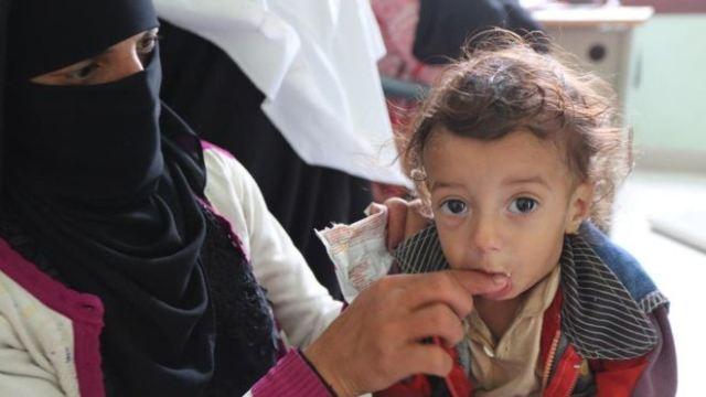 https: img.okezone.com content 2018 09 19 18 1952493 5-juta-anak-di-yaman-berisiko-kelaparan-akibat-konflik-berkepanjangan-4JE0Bo7dtB.jpg
