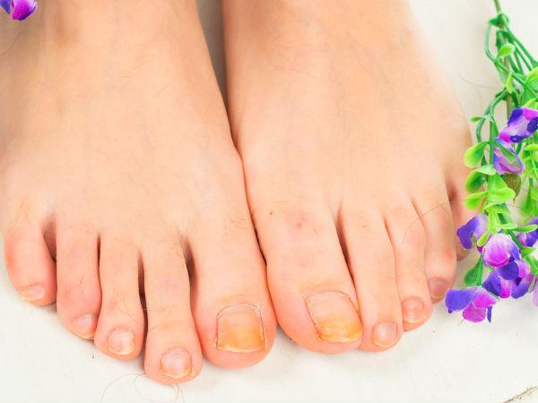 https: img.okezone.com content 2018 10 14 481 1963817 sering-biarkan-kaki-lembab-awas-terinfeksi-jamur-kuku-dJxN6gALZb.jpg