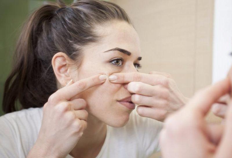 Bekas luka ini pun merupakan bekas luka yang terlihat di wajah akibat proses peradangan pada jerawat.