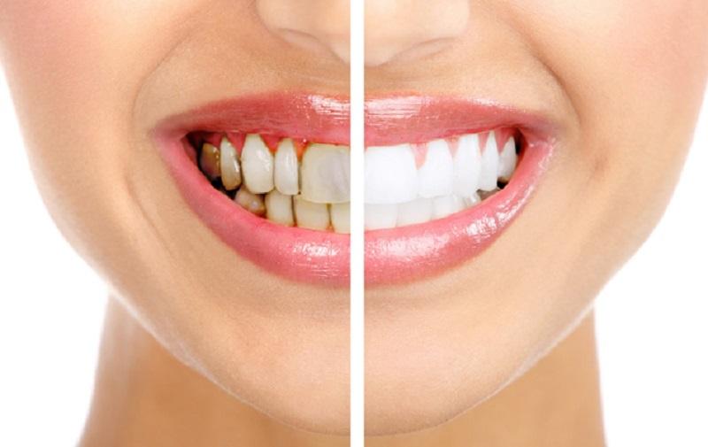 Wajib Tahu Ini Penyebab Gigi Kuning Dan Cara Mengatasinya Okezone