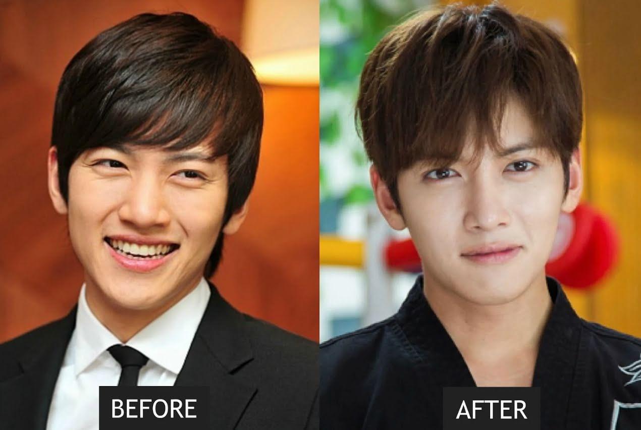 https: img.okezone.com content 2018 12 30 194 1997847 ini-6-bintang-korea-yang-lakukan-prosedur-bedah-kosmetik-oN0BKrYqwk.jpg