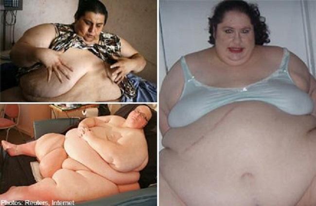 https: img.okezone.com content 2019 01 15 481 2004719 3-orang-dengan-obesitas-terparah-di-dunia-bobotnya-hingga-635-kilogram-yEIVgjfcdl.jpg