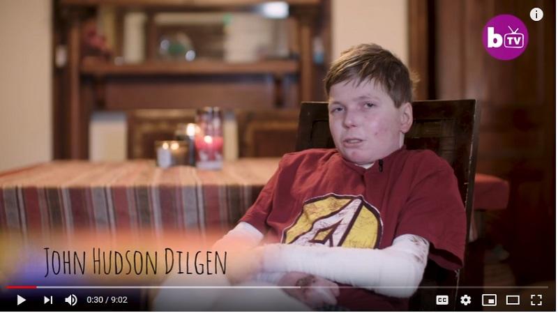 https: img.okezone.com content 2019 02 27 481 2023698 menderita-penyakit-langka-remaja-ini-kulitnya-melepuh-saat-disentuh-V9XDlYL0MN.jpg