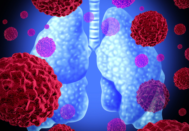 https: img.okezone.com content 2019 02 28 481 2024090 mengenal-imunoterapi-pengobatan-terbaru-bagi-pengidap-kanker-paru-paru-aqmfBVT5Ch.png