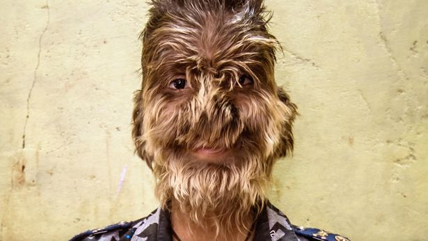 https: img.okezone.com content 2019 02 28 481 2024205 kisah-anak-lelaki-pengidap-sindrom-werewolf-sekujur-tubuhnya-dipenuhi-rambut-sEjcQOLvwH.jpg
