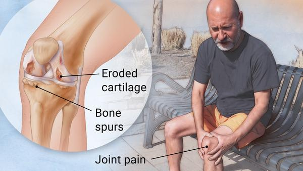 https: img.okezone.com content 2019 04 12 481 2042749 berbeda-dengan-osteoporosis-osteoartritis-bisa-sebabkan-disabilitas-zNqZVpoBDp.jpg