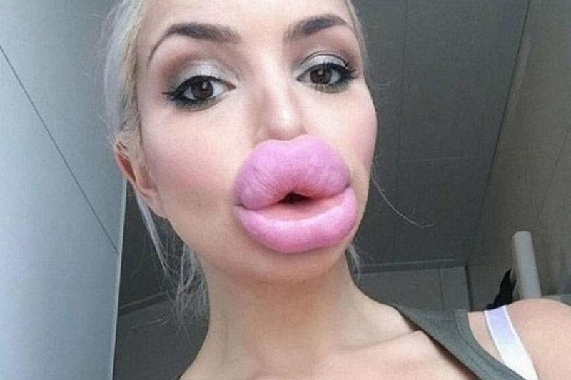 https: img.okezone.com content 2019 04 15 611 2043542 viral-tren-filler-bibir-bintang-porno-tambah-seksi-atau-seram-GqbGyXd2uf.jpg