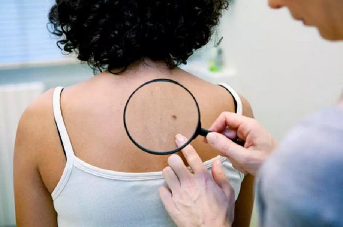 https: img.okezone.com content 2019 05 01 481 2050290 jangan-diremehkan-6-jenis-benjolan-pada-kulit-ini-bisa-berbahaya-FWfw5HYVje.jpg