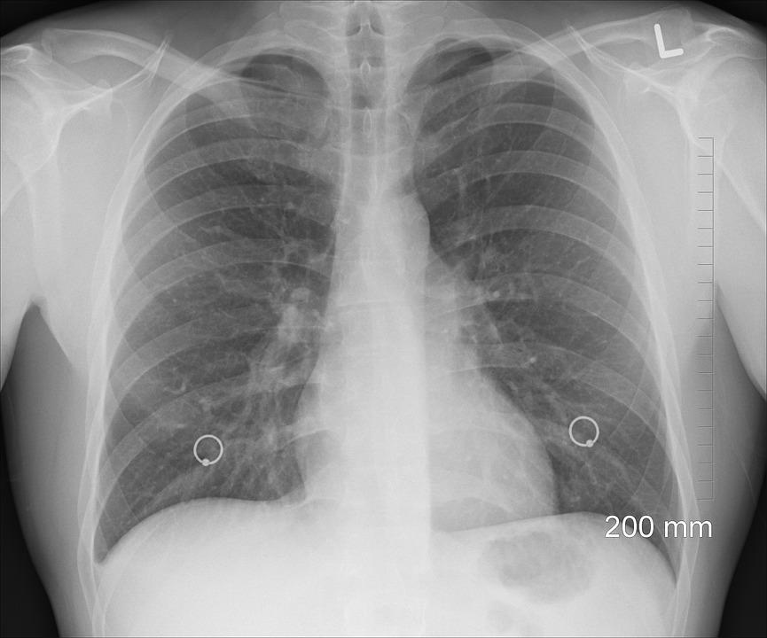 https: img.okezone.com content 2019 05 09 481 2053326 cegah-penyebaran-tuberkulosis-dengan-rajin-memakai-masker-uTToRJ2FDz.jpg