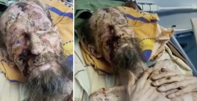 https: img.okezone.com content 2019 07 01 18 2073107 pria-terlihat-seperti-mumi-usai-diserang-beruang-begini-faktanya-q9u781fEdi.jpg