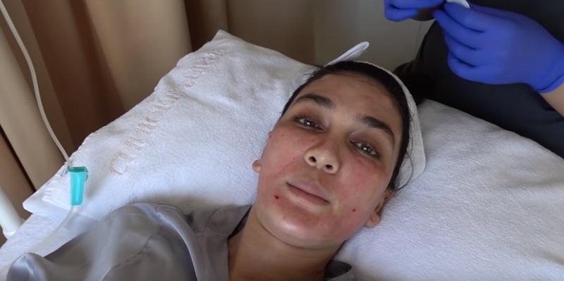 https: img.okezone.com content 2019 07 18 611 2080585 luna-maya-facial-darah-biar-kulitnya-cantik-dan-sehat-5bGzyNtGdK.jpg