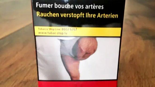 https: img.okezone.com content 2019 07 21 18 2081566 pria-yang-kakinya-diamputasi-terkejut-lihat-fotonya-di-bungkus-rokok-digunakan-tanpa-izin-jk7ZJGCCmJ.jpg
