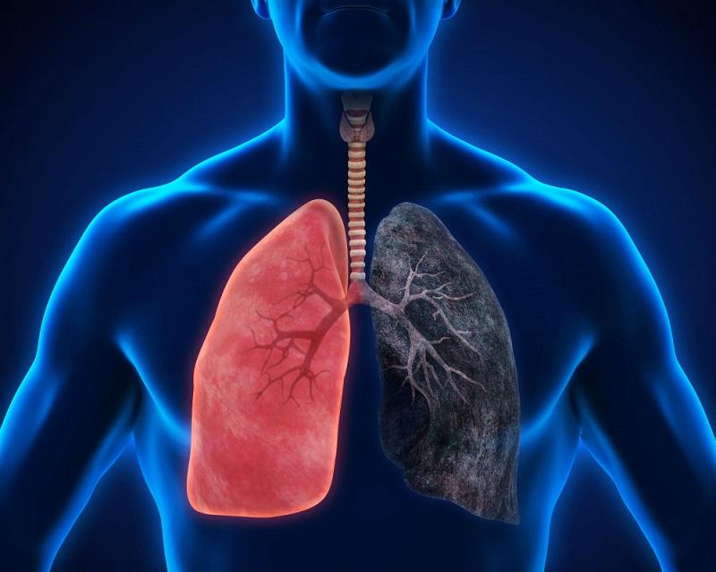 https: img.okezone.com content 2019 09 26 481 2109825 gaya-hidup-seperti-ini-bikin-kesehatan-paru-paru-memburuk-20pAsadVX7.jpg
