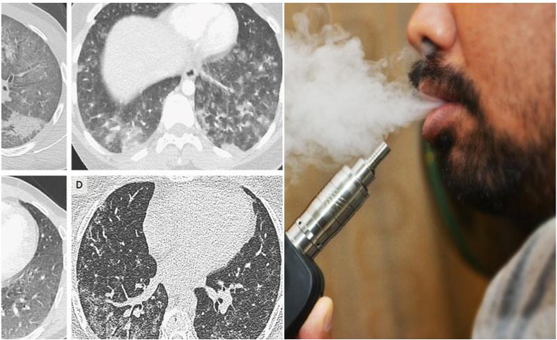 https: img.okezone.com content 2019 11 11 481 2128487 diduga-akibat-isap-vape-remaja-malaysia-alami-cedera-paru-paru-serius-iBEujfOrLG.jpg