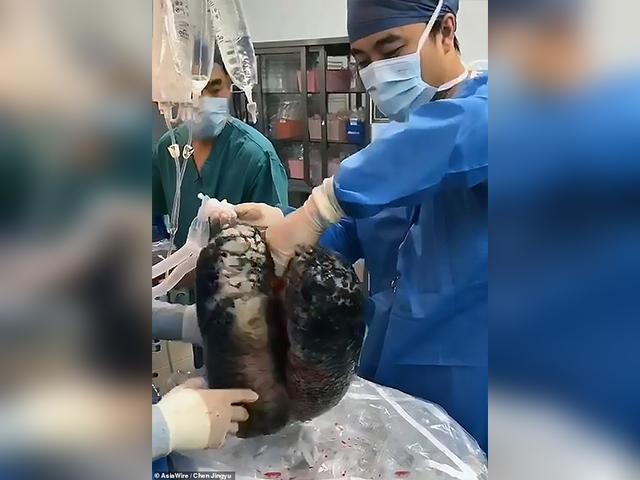 https: img.okezone.com content 2019 11 19 18 2131732 paru-paru-hitam-akibat-merokok-30-tahun-viral-BSMIPXyMGE.jpg