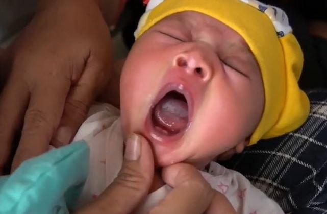 https: img.okezone.com content 2020 01 12 340 2152037 bayi-baru-lahir-tumbuh-gigi-gegerkan-warga-buton-FDlJhadZrB.JPG