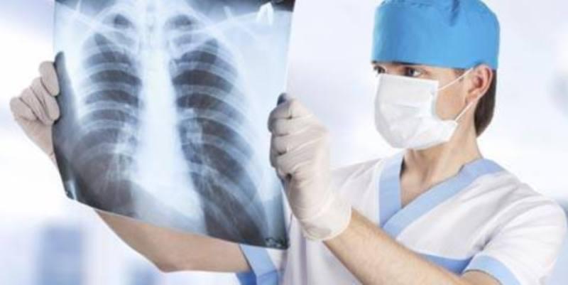 muncul akibat bakteri atau virus yang ada di hidung dan sinusmenyebar ke paru-paru.