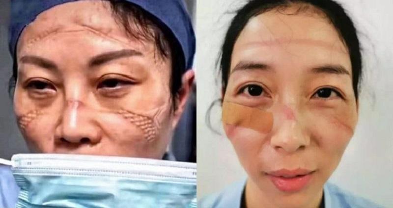 https: img.okezone.com content 2020 02 14 612 2168535 bekerja-seharian-begini-penampakan-wajah-suster-yang-rawat-pasien-covid-19-V1UhcbwwZU.jpg