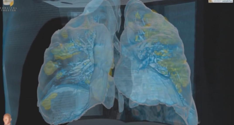 https: img.okezone.com content 2020 03 26 56 2189127 teknologi-vr-tampilkan-kerusakan-paru-paru-pasien-virus-corona-Ba0fU4Kjej.jpeg